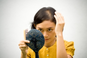 Image result for Alopecia traction